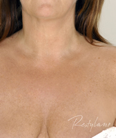 Decolletage 1 After