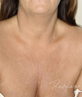 Decolletage 1 Before