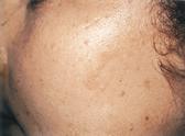 IPL Skin 2 After