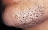 ipl-hair-before-1