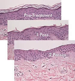 Microdermabrasion process